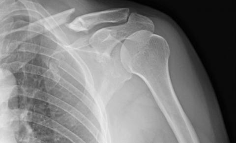 Diferenças entre fraturas e lesões são dúvidas frequentes dos pacientes